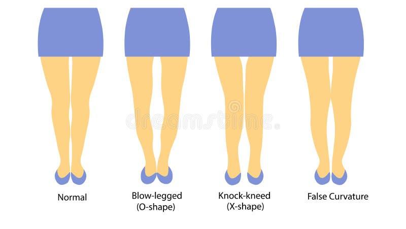 用妇女腿不同的形状的传染媒介例证  向量例证