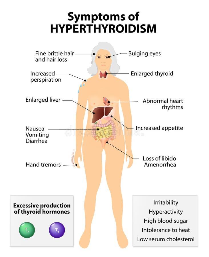 甲状腺机能亢进或在活跃甲状腺 hyperthyreosis 向量例证