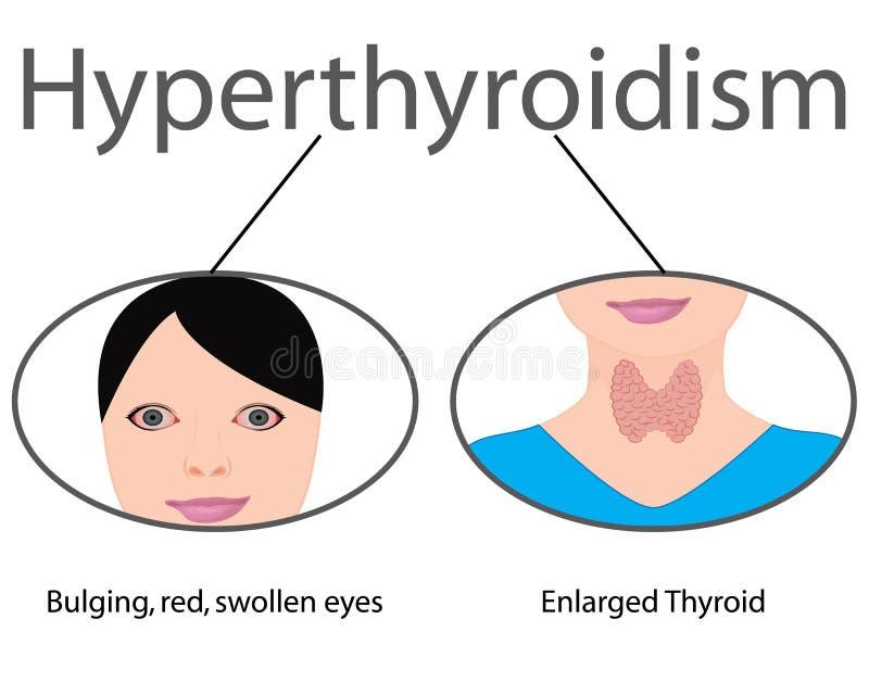 甲状腺机能亢进 扩大的甲状腺 内分泌官能不良传染媒介例证 向量例证