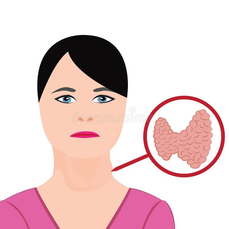 甲状腺病 内分泌官能不良传染媒介例证 向量例证