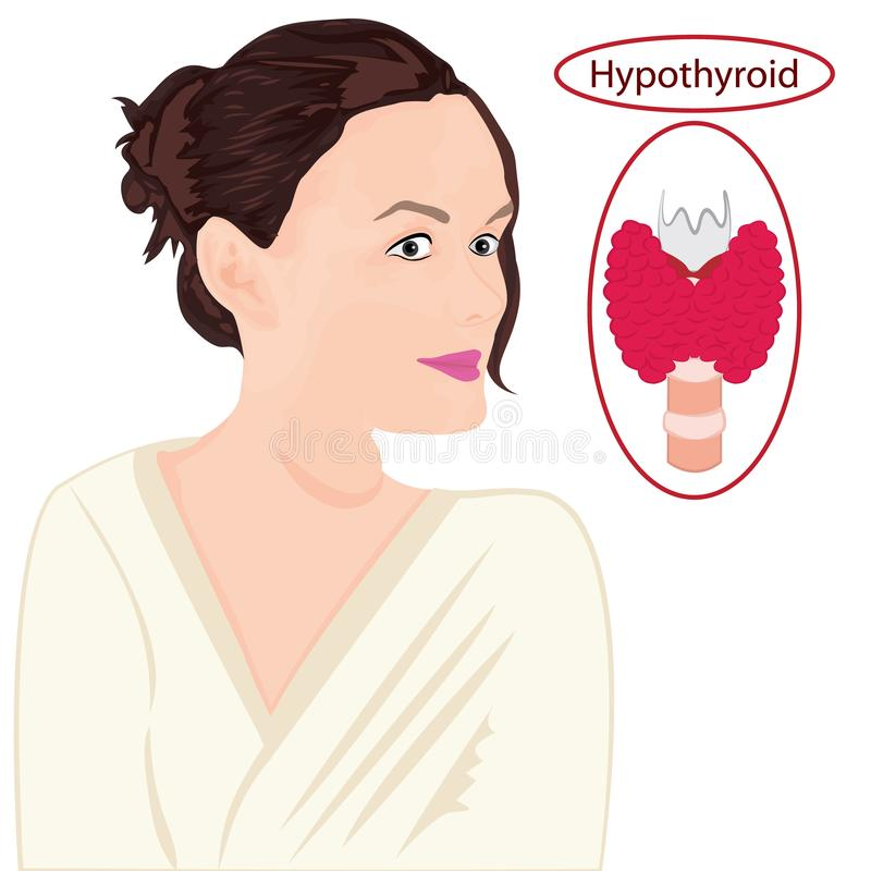 甲状腺 扩大的甲状腺 内分泌官能不良传染媒介例证 皇族释放例证