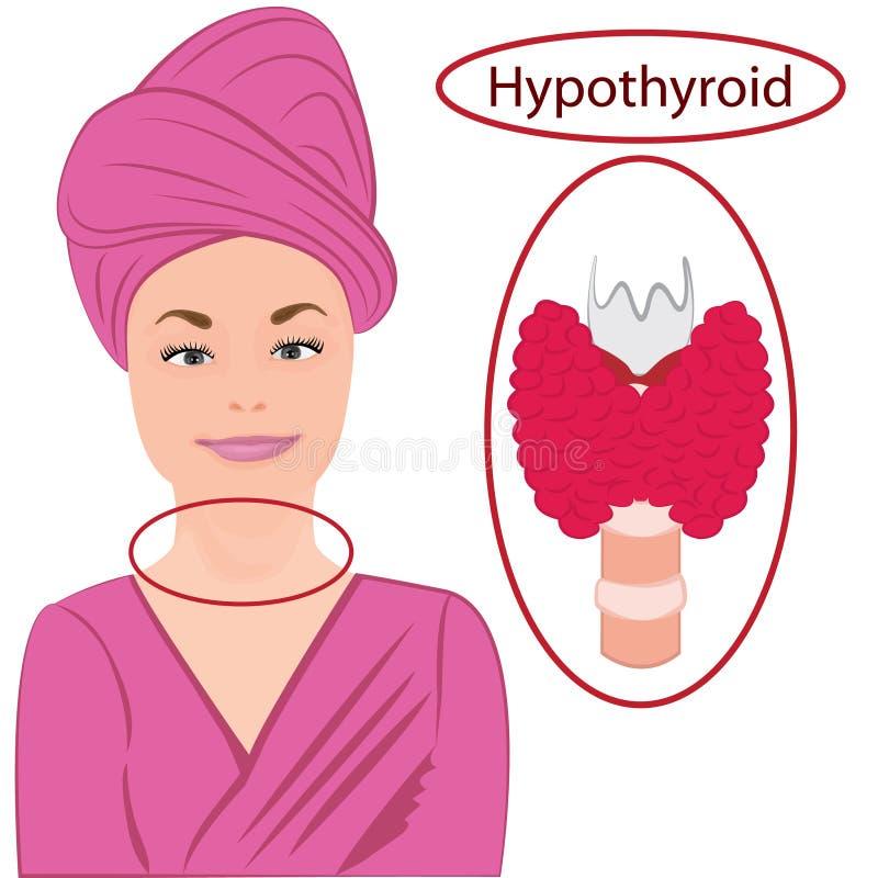 甲状腺 扩大的甲状腺 内分泌官能不良传染媒介例证 向量例证