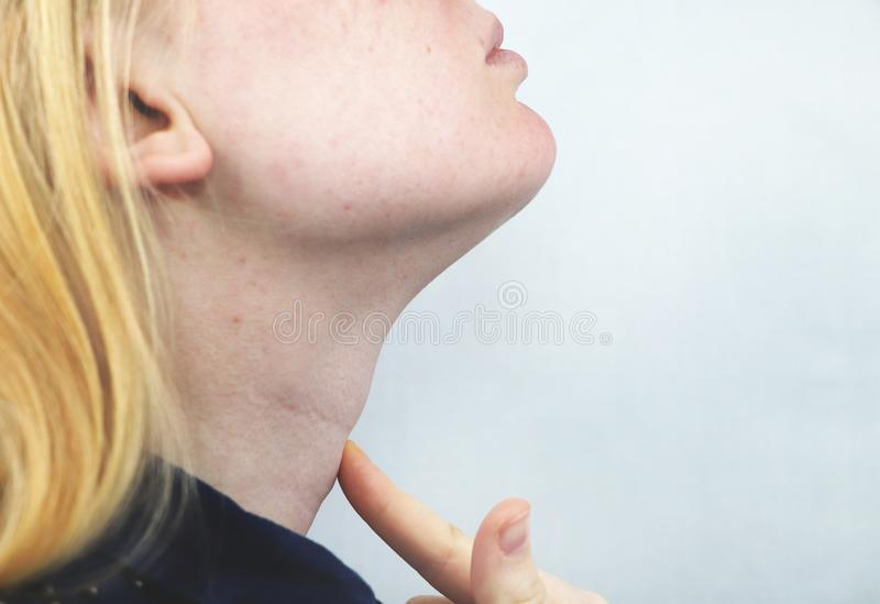 甲状腺 逗人喜爱的病的年轻白肤金发的妇女特写镜头画象有白色的上面的喉咙痛,握在她的脖子的手 库存图片