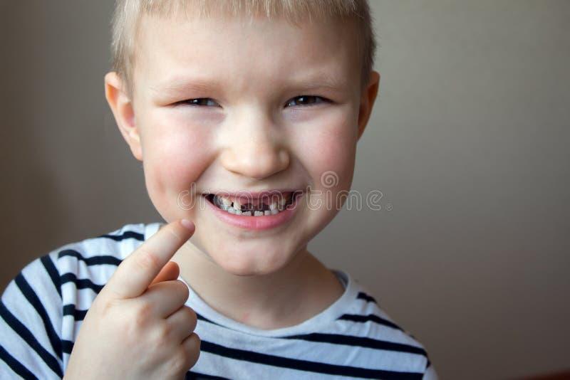 男孩缺掉乳齿 免版税库存照片