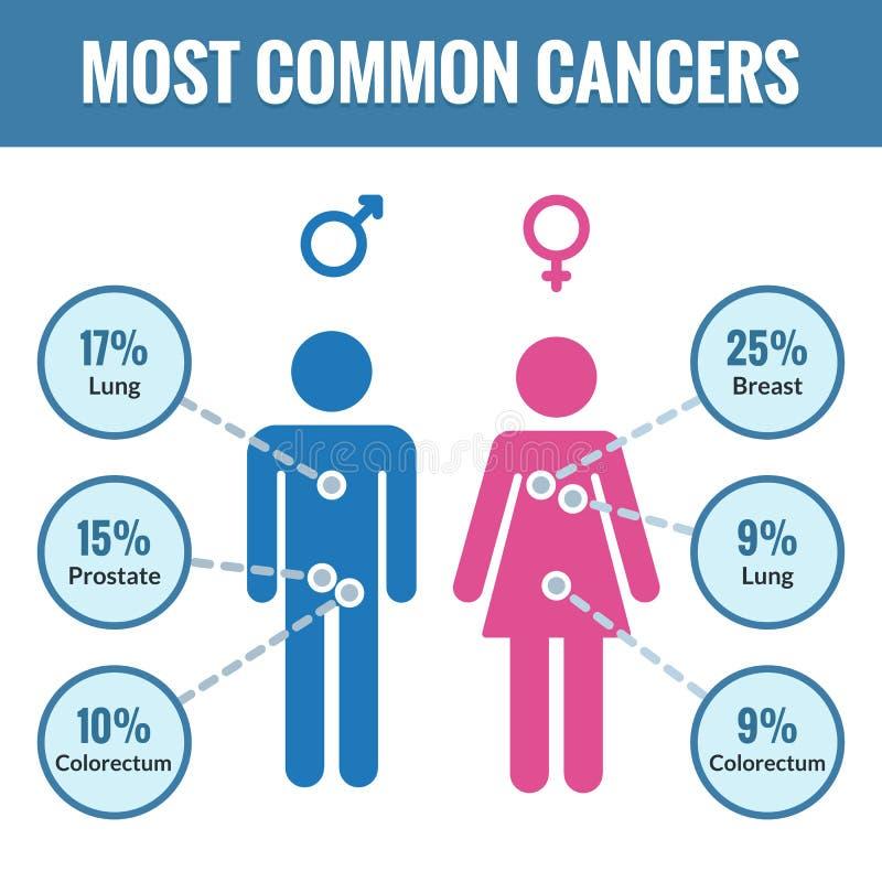 男性和女性癌症infographics 向量例证