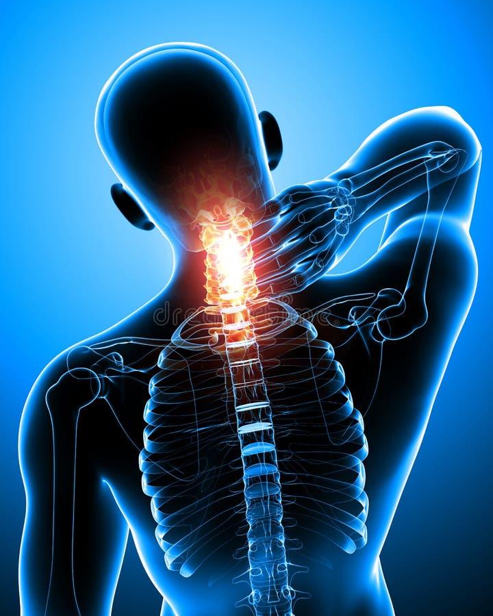 男性脖子痛 向量例证