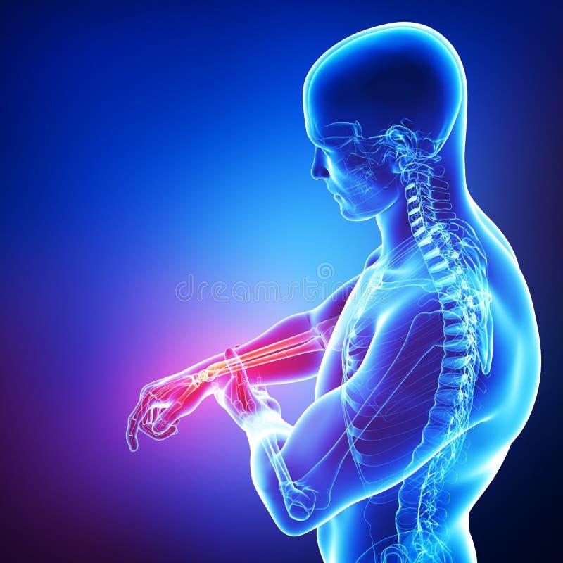 男性腕子痛苦解剖学  皇族释放例证