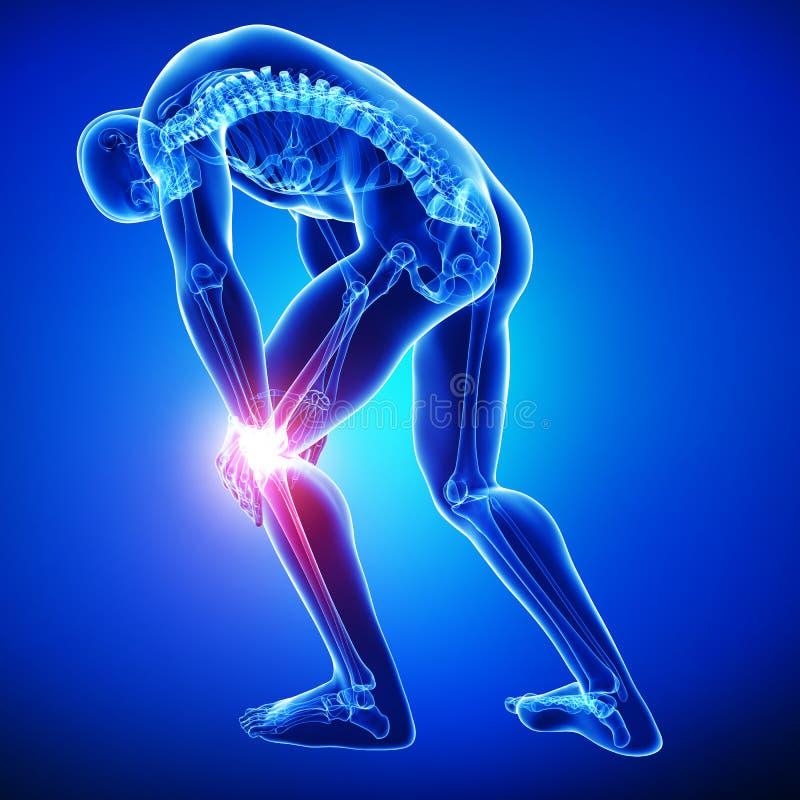 男性膝盖痛苦 库存例证