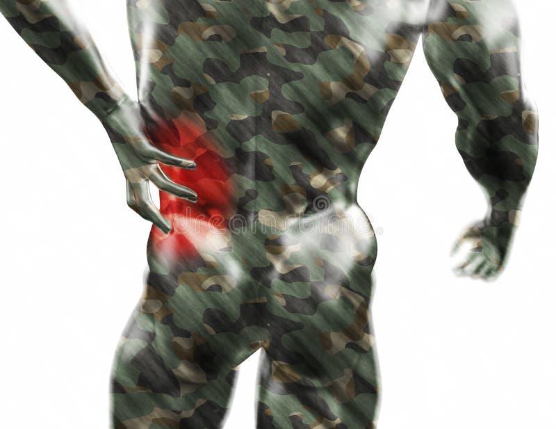 男性躯干,在后面的痛苦在白色背景 3d回报了医疗例证 向量例证