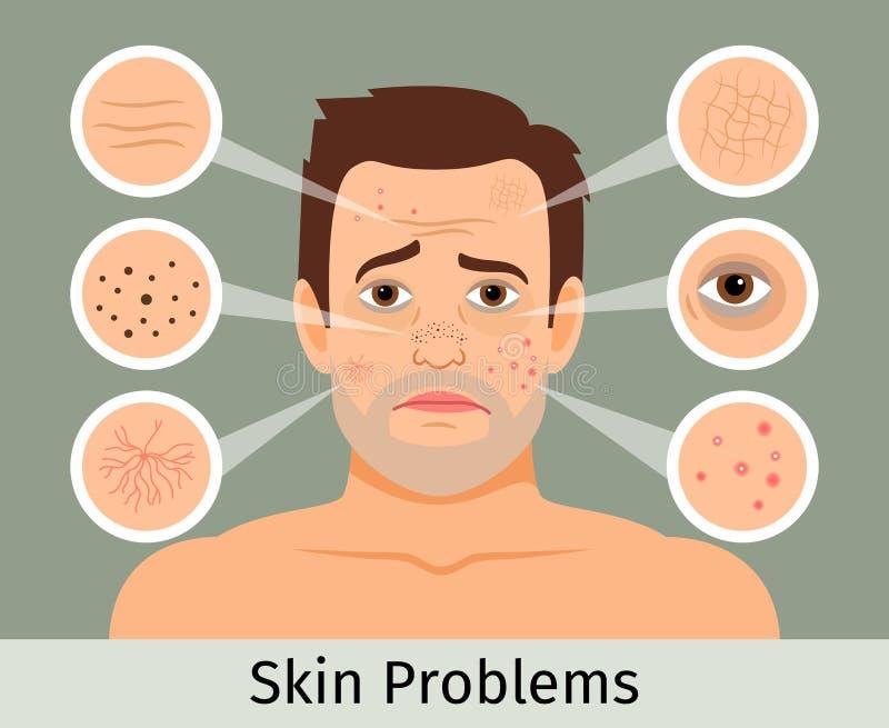 男性面部皮肤问题 皇族释放例证