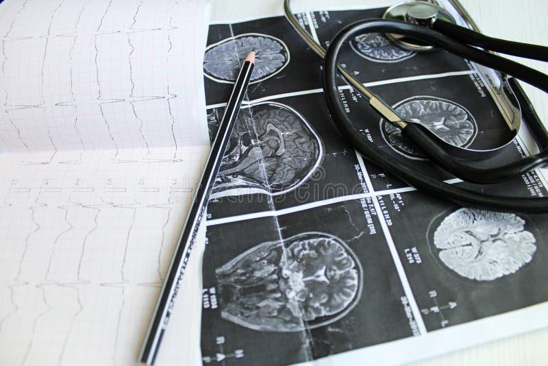 医疗工具 免版税图库摄影