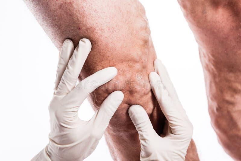 医疗手套的医生审查有静脉曲张的o一个人 免版税库存图片