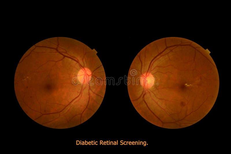 医疗照片tractional (眼睛屏幕)糖尿病视网膜掩护 库存图片