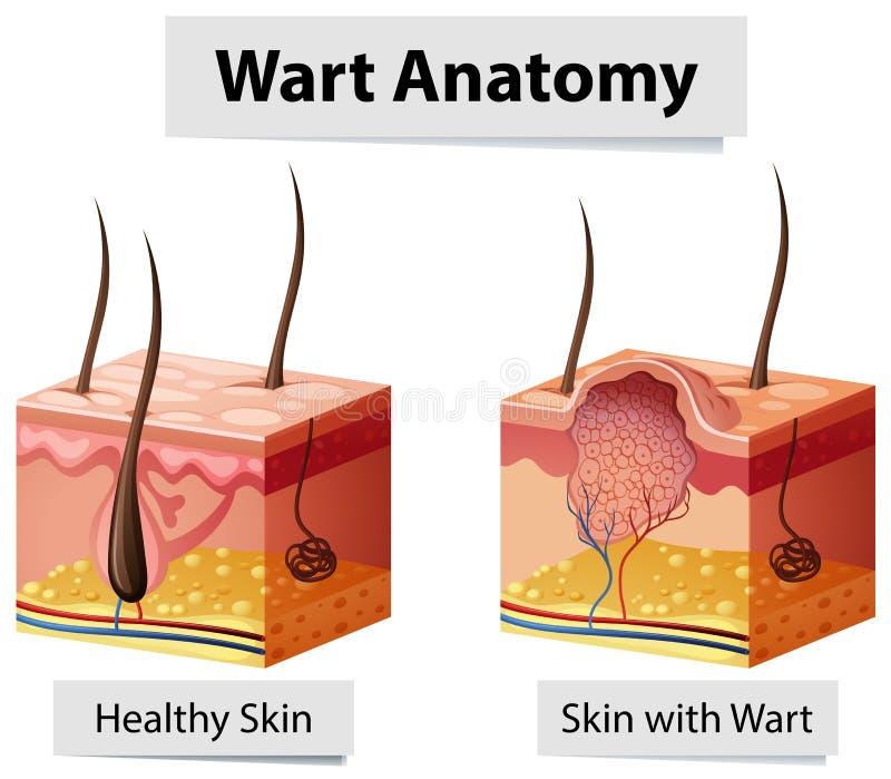 疣人的皮肤解剖学例证 库存例证
