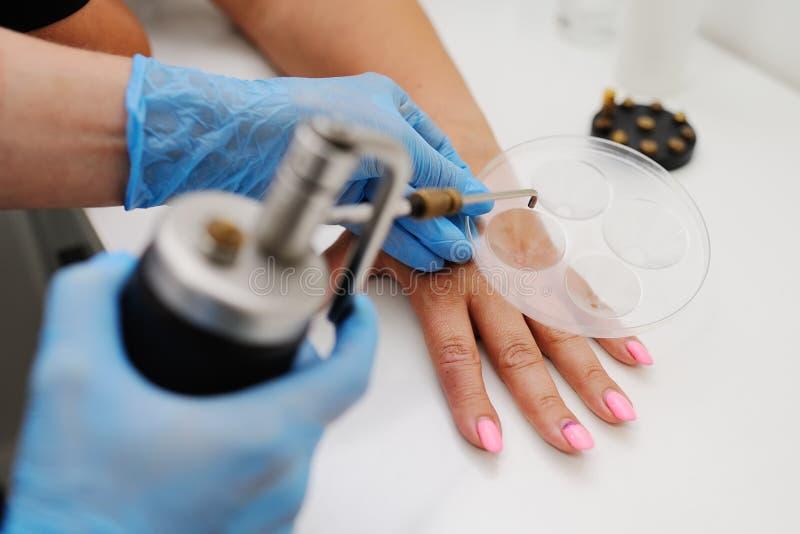 疣撤除在皮肤学诊所的 免版税库存图片