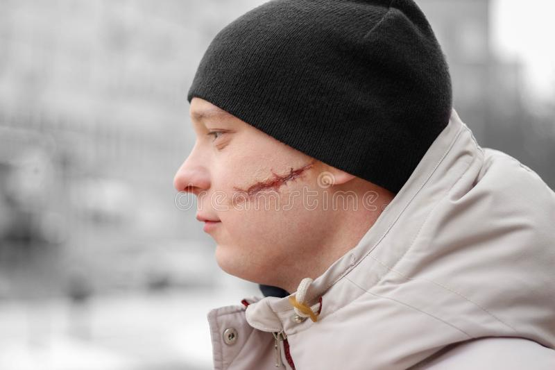 疤痕面部 一年轻人以在他的面孔的大伤痕 库存图片