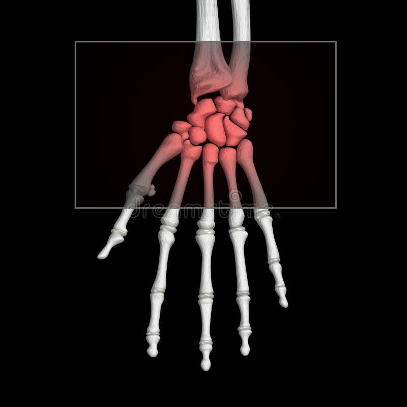 疼痛腕子 库存例证