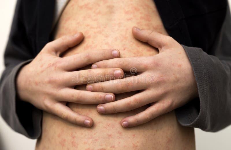 病态的儿童身体、胃有红色仓促斑点的从麻疹或水痘 传染性儿童疾病和治疗 免版税库存照片