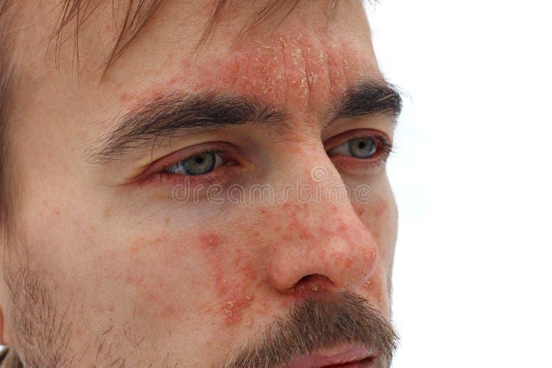 病的人头有红色过敏反应的在脸皮、赤红和剥牛皮癣在鼻子、前额和面颊,季节性 库存照片