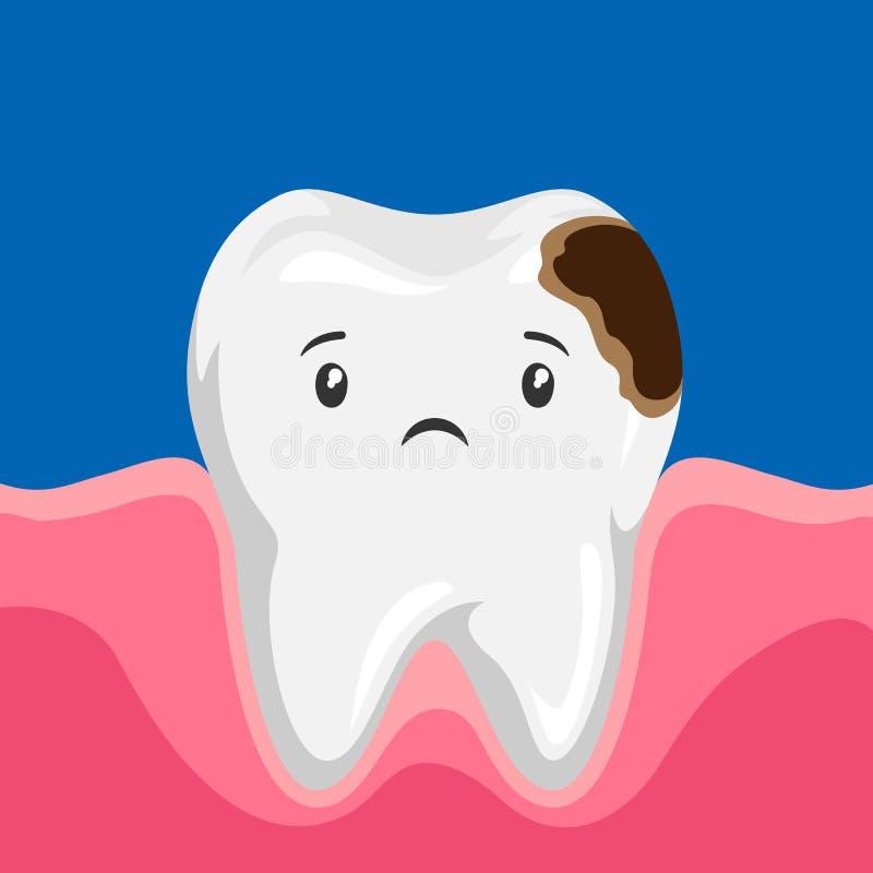 病的牙的例证有龋的 库存例证