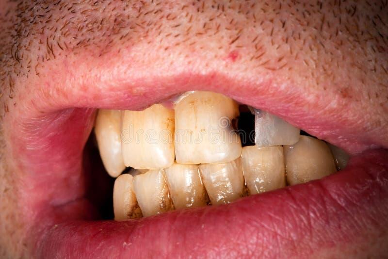 病的牙 库存图片