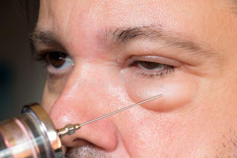 病的眼睛和眼皮的考试 库存图片