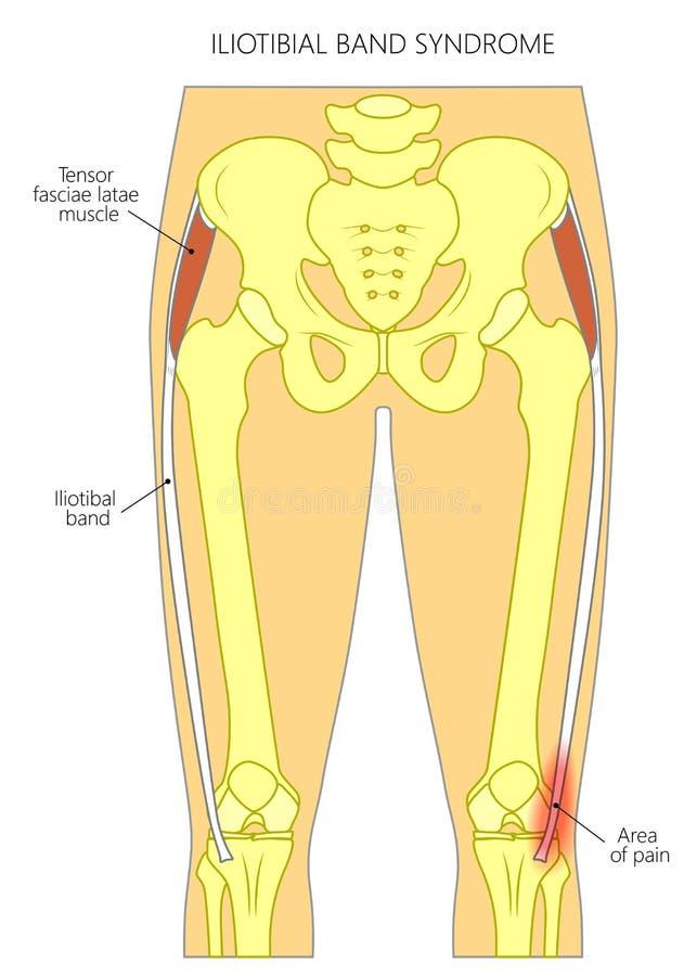 痛苦在上弦与斜端杆结点iliotibial带综合症状 皇族释放例证