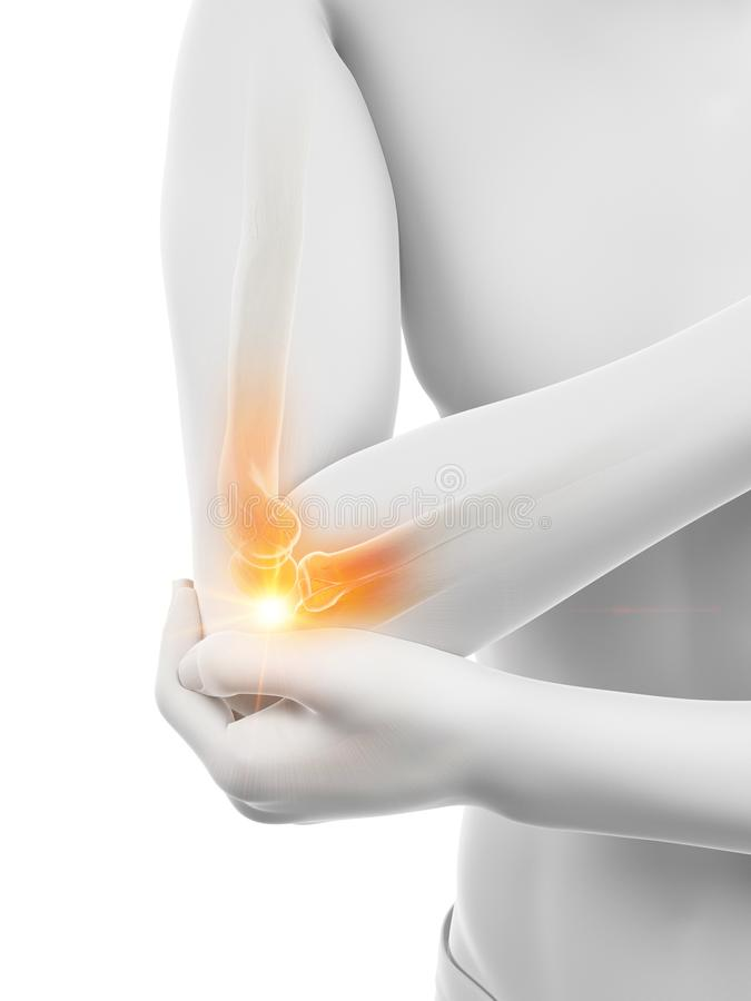 痛苦的手肘 向量例证