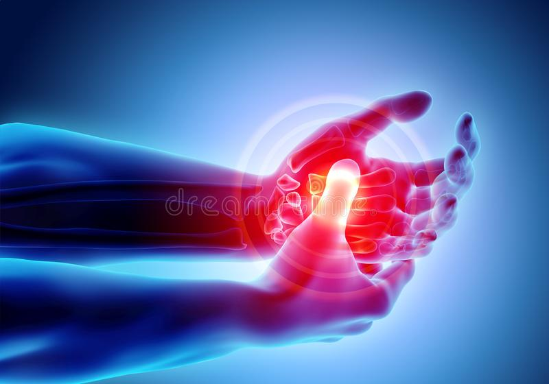 痛苦的棕榈-最基本的X-射线,医疗概念 皇族释放例证