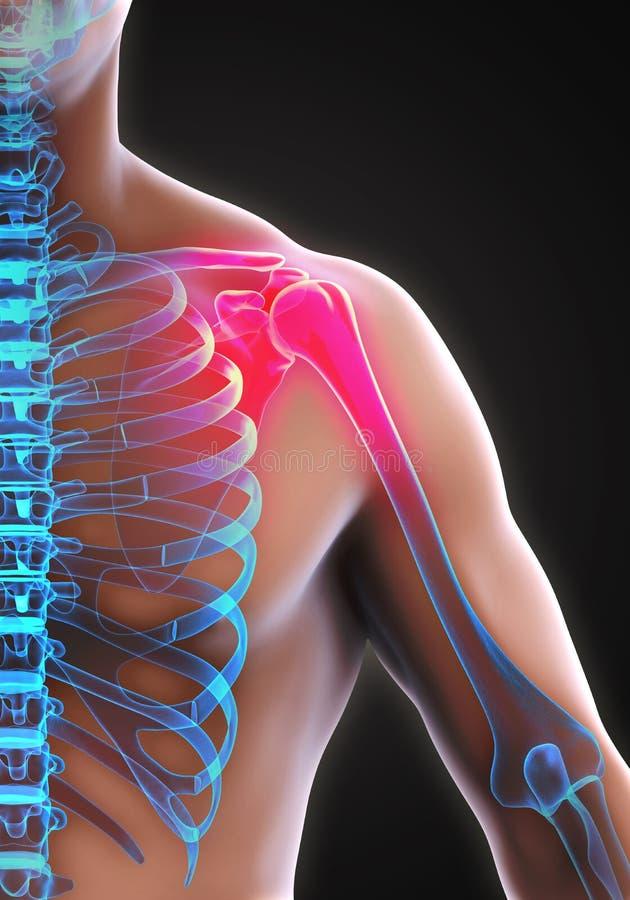 痛苦的肩膀例证 向量例证