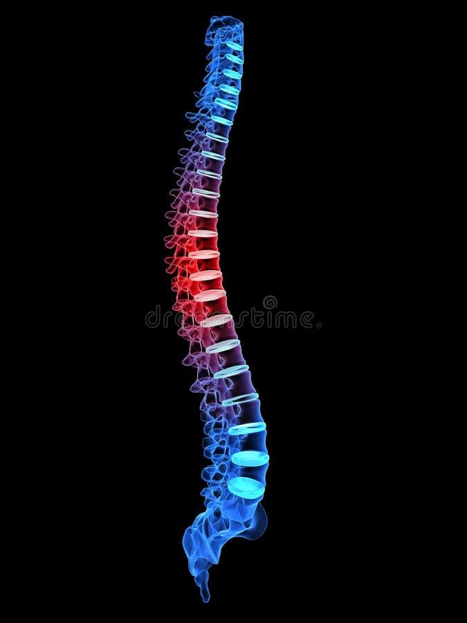 痛苦的脊椎 皇族释放例证