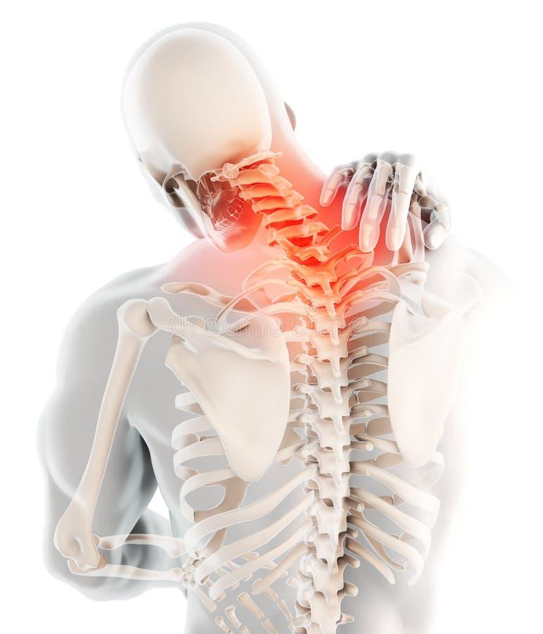 痛苦的脖子-子宫颈脊椎最基本的X-射线, 3D例证 库存例证