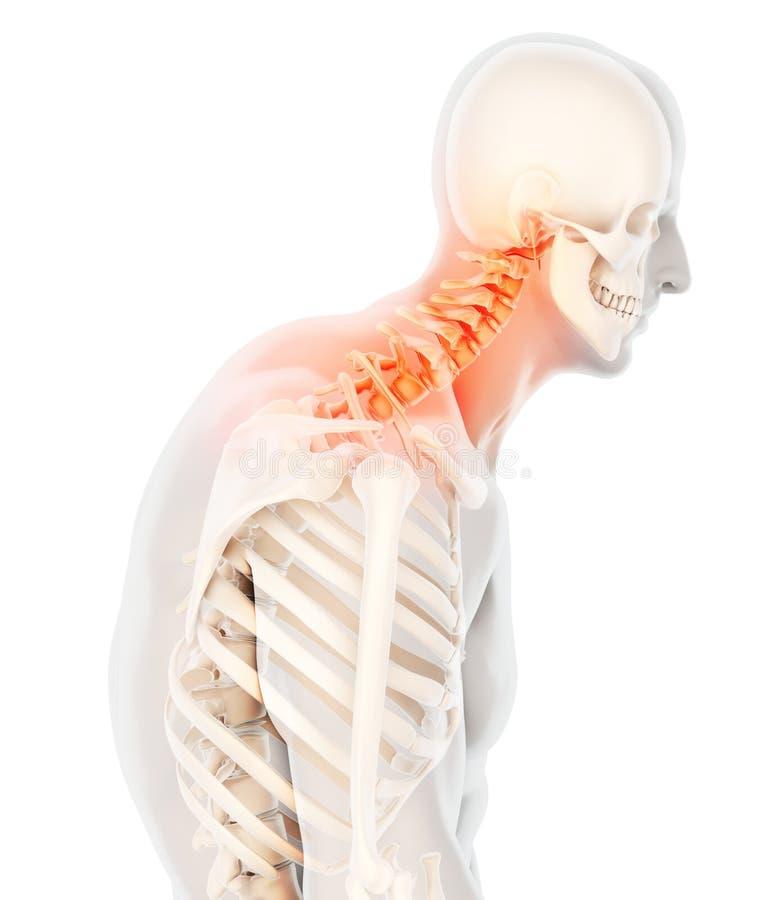 痛苦的脖子-子宫颈脊椎最基本的X-射线, 3D例证 向量例证