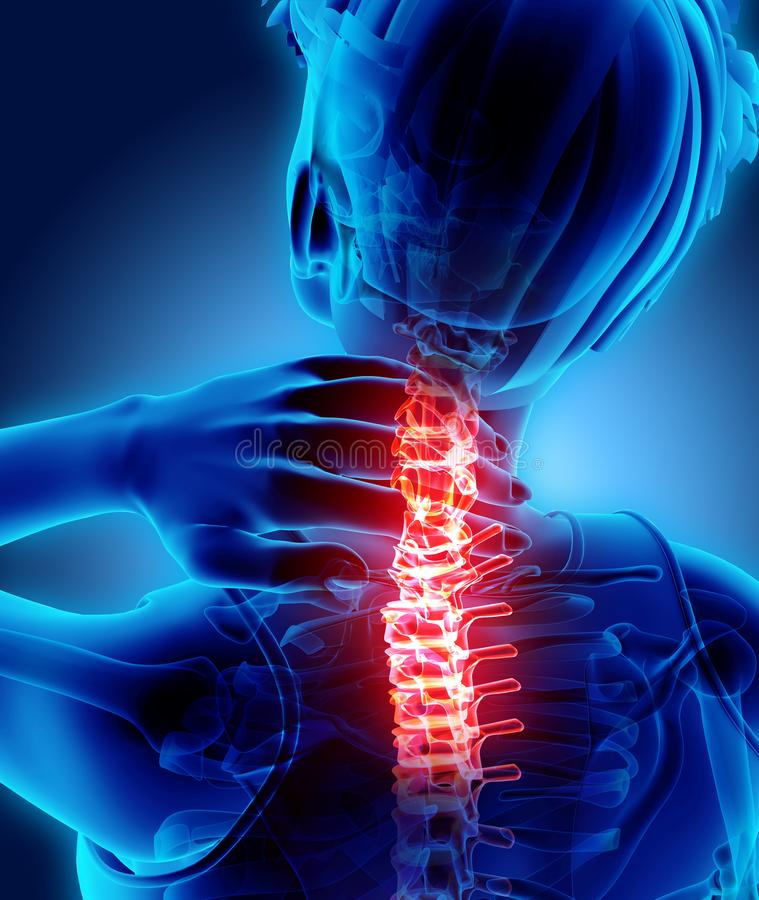 痛苦的脖子-子宫颈脊椎最基本的X-射线, 3D例证 皇族释放例证