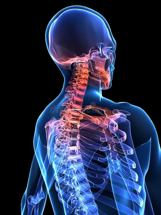 痛苦的脖子 向量例证