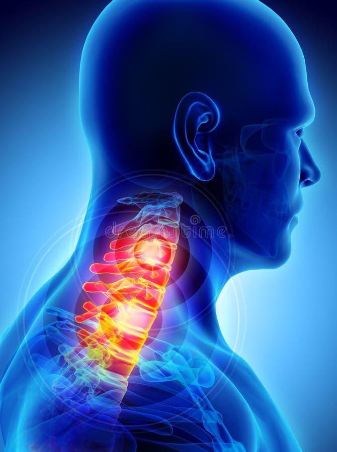 痛苦的脖子- cervica脊椎最基本的X-射线, 3D例证 皇族释放例证