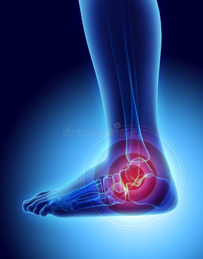 痛苦的脚腕-最基本的X-射线 向量例证