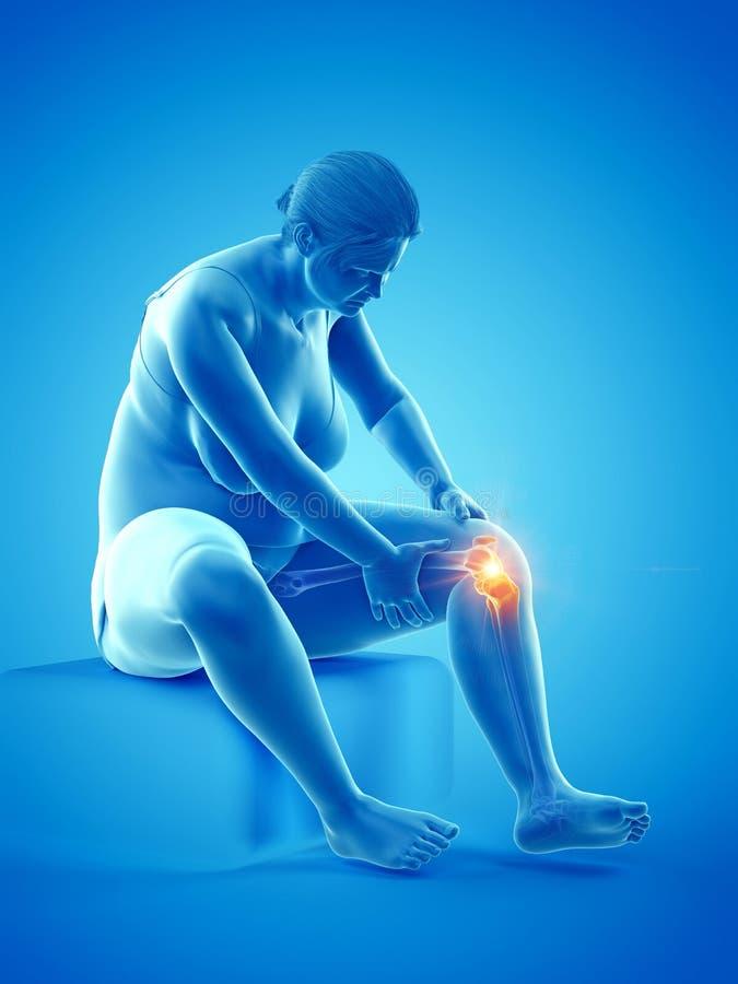 痛苦的膝盖关节 库存例证