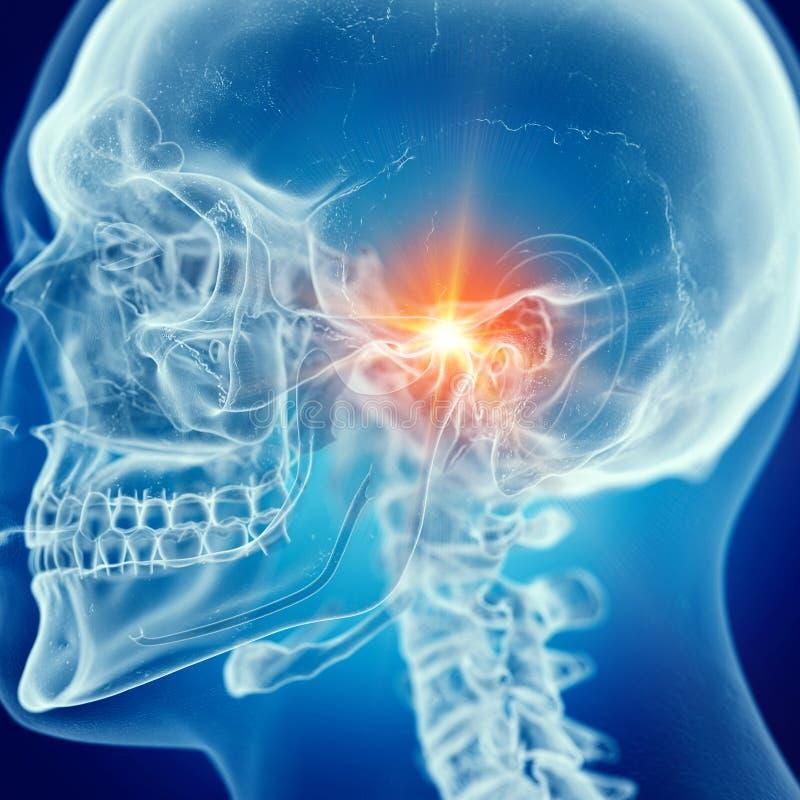 痛苦的颞下颌关节 库存例证