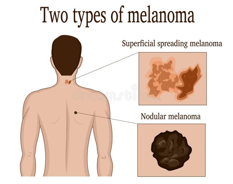 黑瘤的两种类型 向量例证