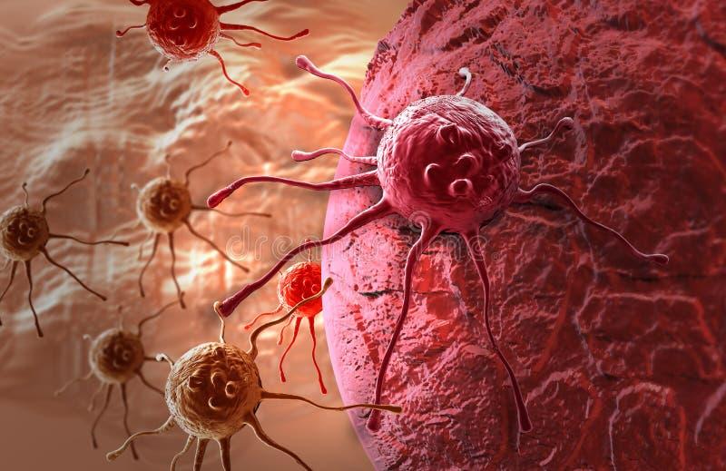 癌细胞 皇族释放例证