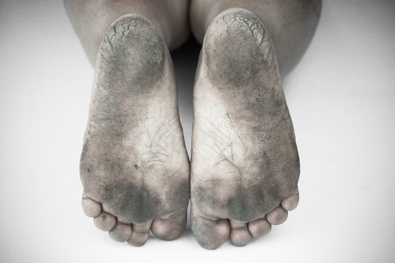 黑白照片或肮脏的脚后面和白色或破裂的脚跟孤立在白色背景,医疗或脚人民的健康 库存图片