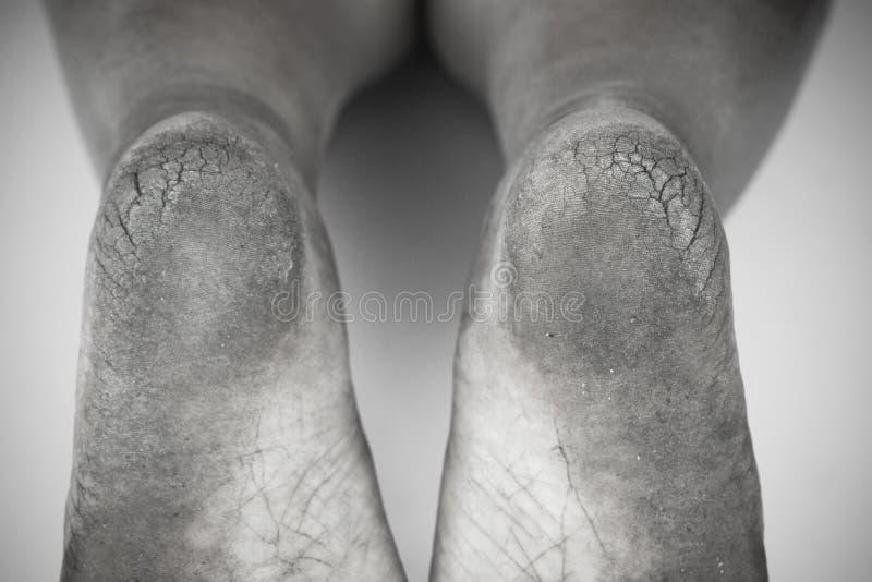 黑白照片或肮脏的脚后面和白色或破裂的脚跟孤立在白色背景,医疗或脚人民的健康 库存照片