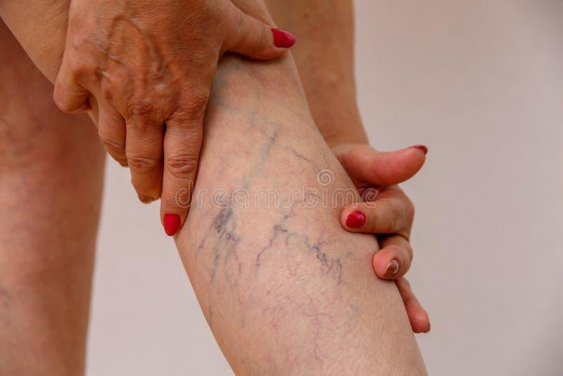 白色内裤的一名年长妇女接触她的有脂肪团和静脉曲张的腿在轻的被隔绝的背景 免版税图库摄影