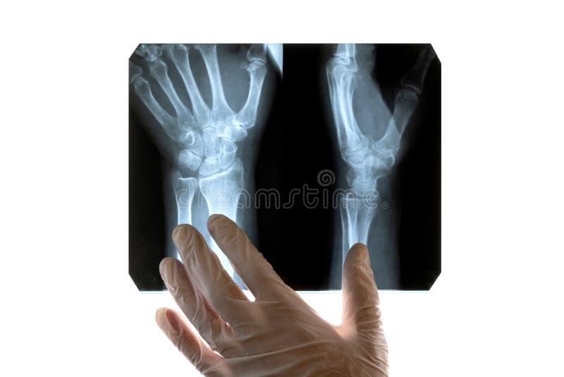 白色手套的一位医生审查一只损坏的手的X-射线 特写镜头 在一个医疗题材的概念,天放射学家或外科医生 库存照片