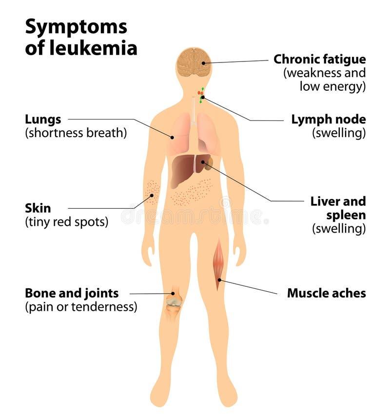 白血病的症状 血癌 库存例证