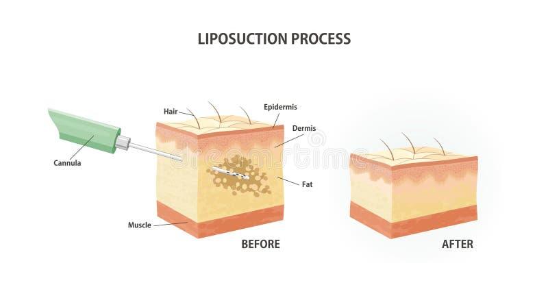 皮下脂肪切除术过程 皇族释放例证