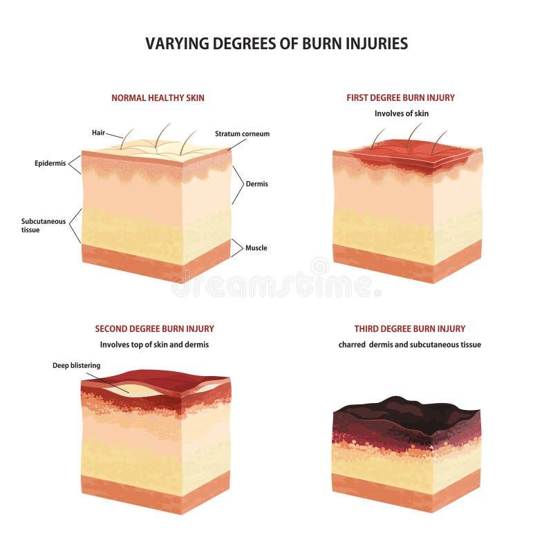皮肤烧伤分类 向量例证