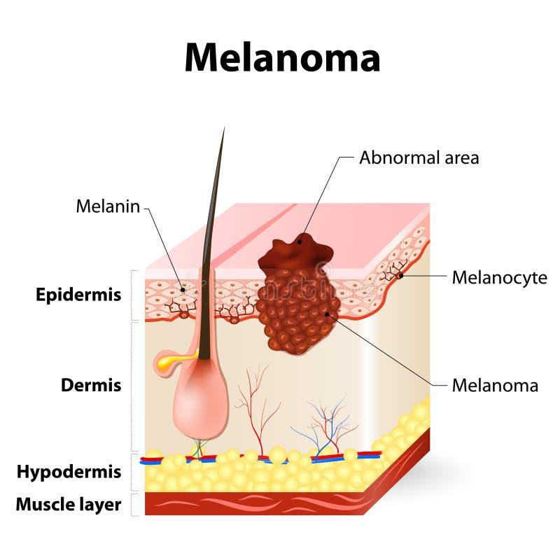 皮肤癌 黑瘤 向量例证