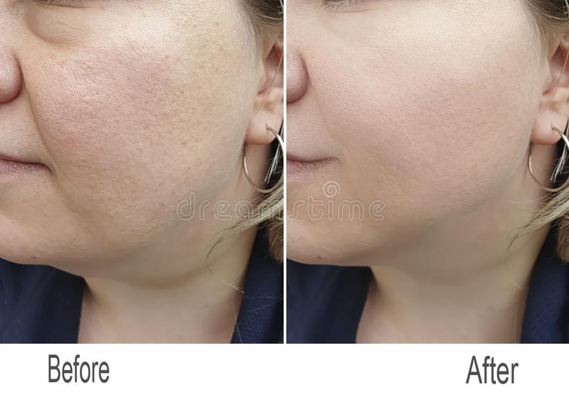 皱痕,皮肤,面颊,面孔 库存照片